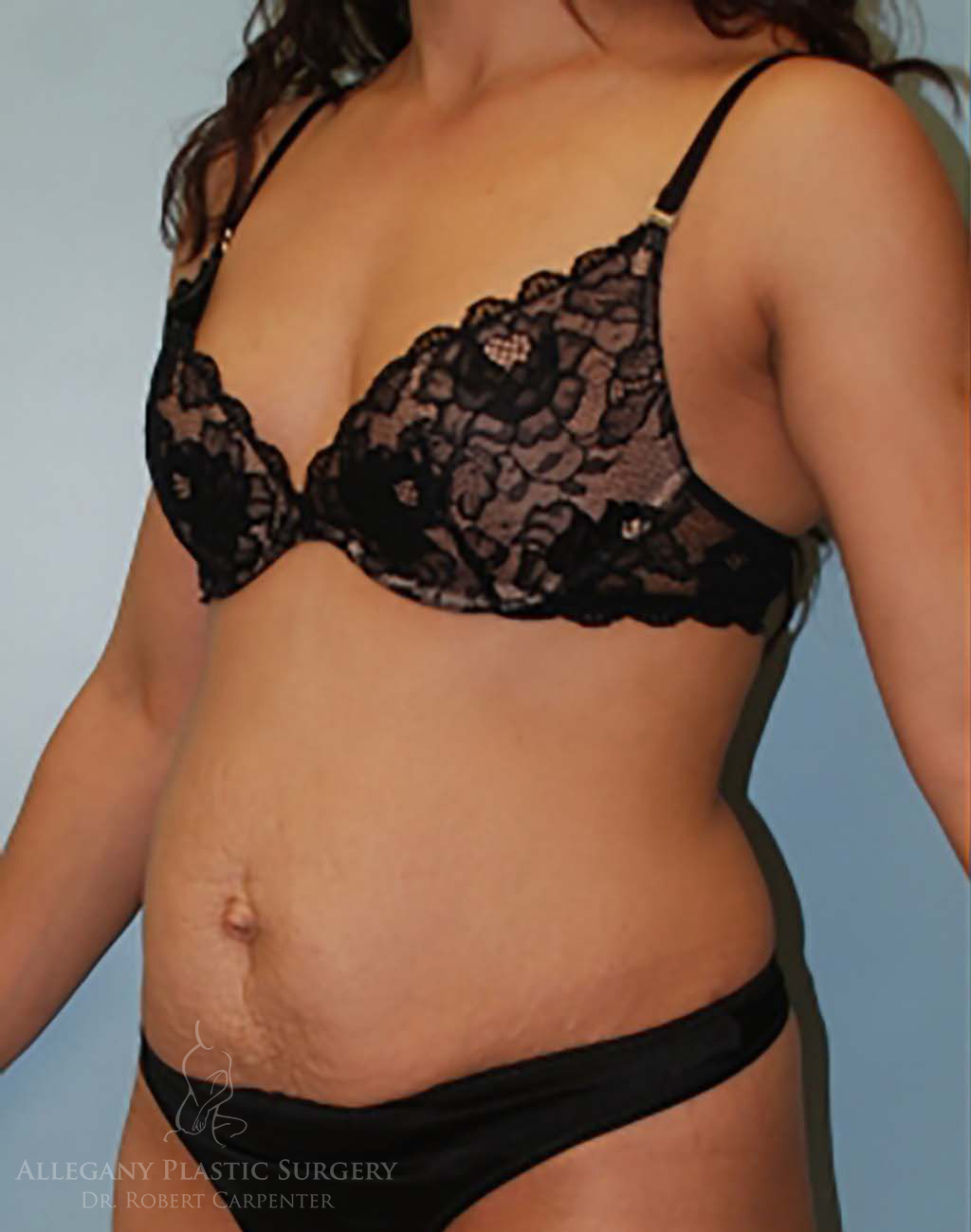Tummy Tuck Patient 2