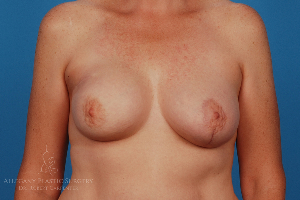Breast Reconstruction Patient 2