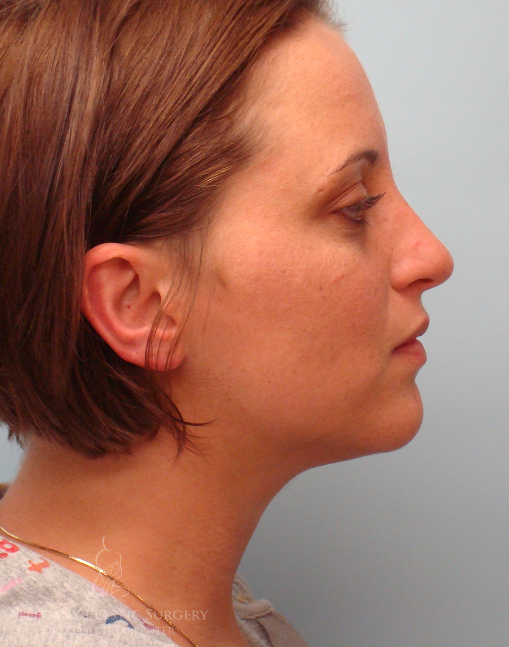 Rhinoplasty/Facial Implants Patient 2